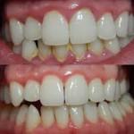 1 parodont