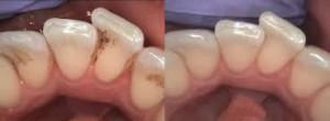 1 zobni kamen (2)