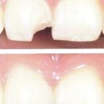 16 luska odlomljen zob copy