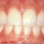 4 zdrava dlesen