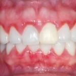 5 gingivitis